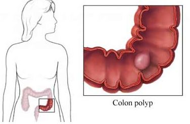 Pólipos intestinales