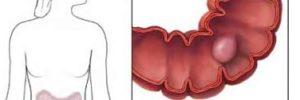 Pólipos intestinales | Síntomas y tratamiento