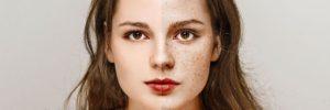 Como Quitar las Pecas de la Cara